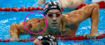Mike Phelps Cupping